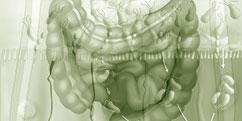 Pathologies - Système digestif - Intestins / Maladie de Crohn