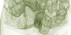 Pathologies - Système digestif - Rectum / Hémorroïdes
