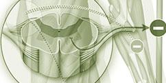 Pathologies - Système nerveux périphérique - Maladie de Charcot