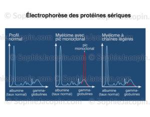 Électrophorèse des protéines sériques