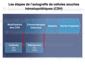 Autogreffe de cellules souches