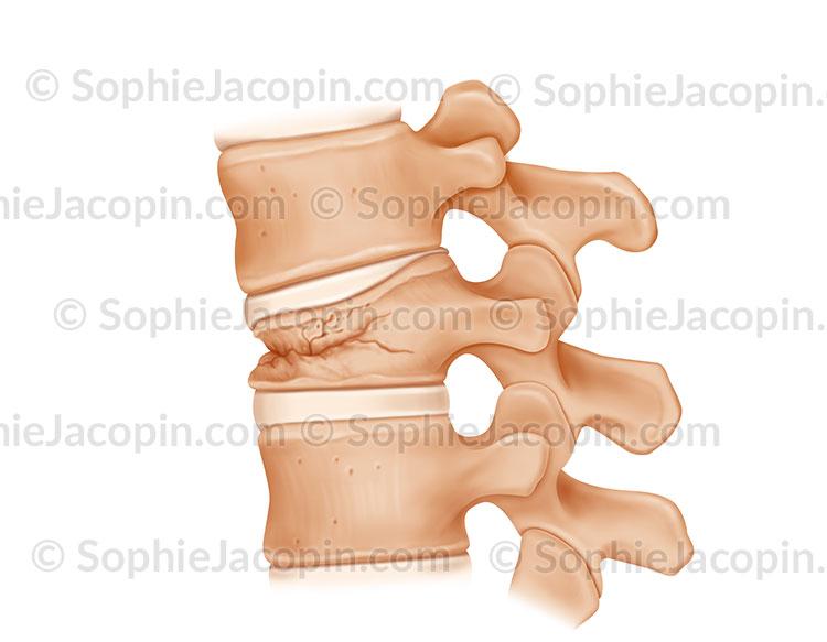 Fracture vertébrale