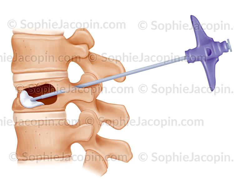 Cyphoplastie, injection du ciment