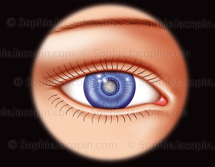 Cataracte modérée