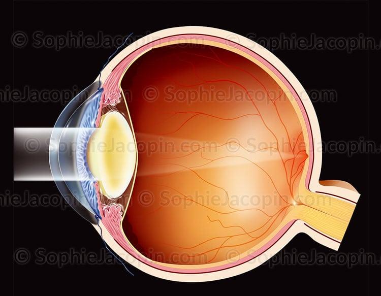 Cataracte sévère