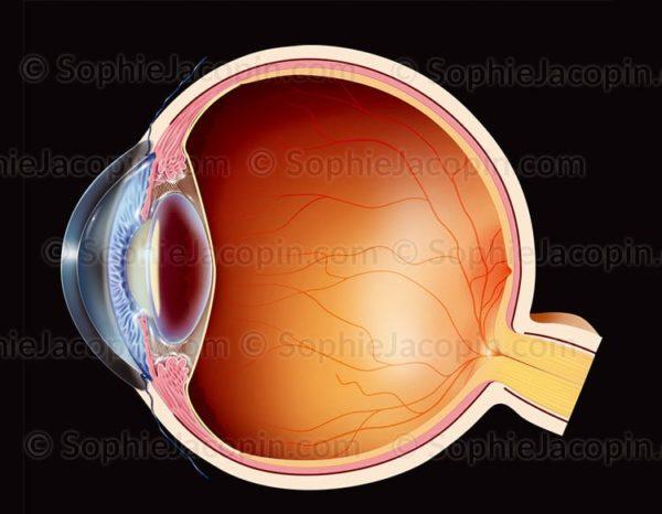 Cataracte sous capsulaire antérieure