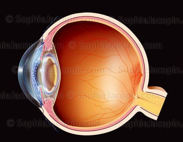 Cataracte corticale