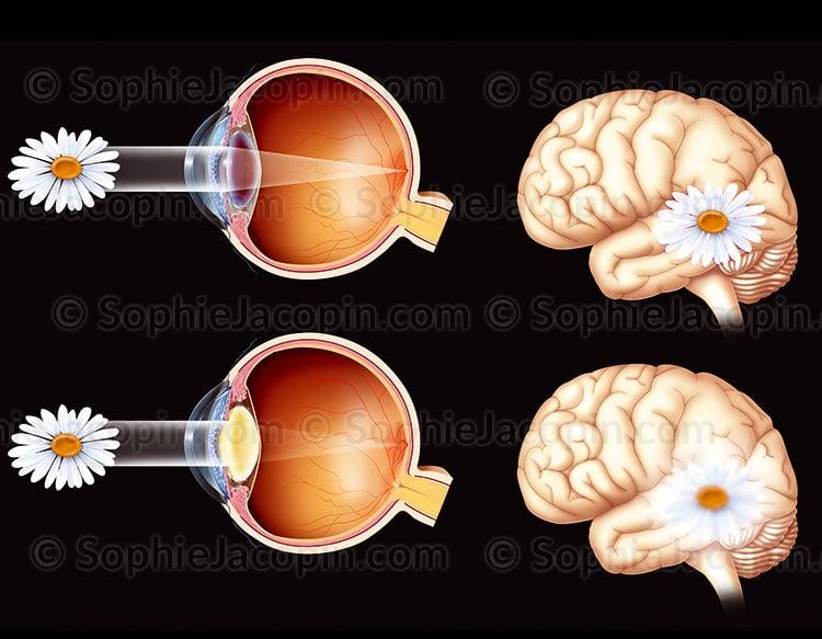 Vision avec cataracte