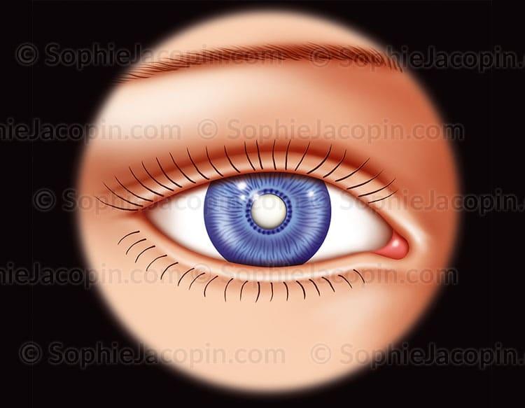 Cataracte totale