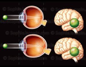Vision avec Myopie