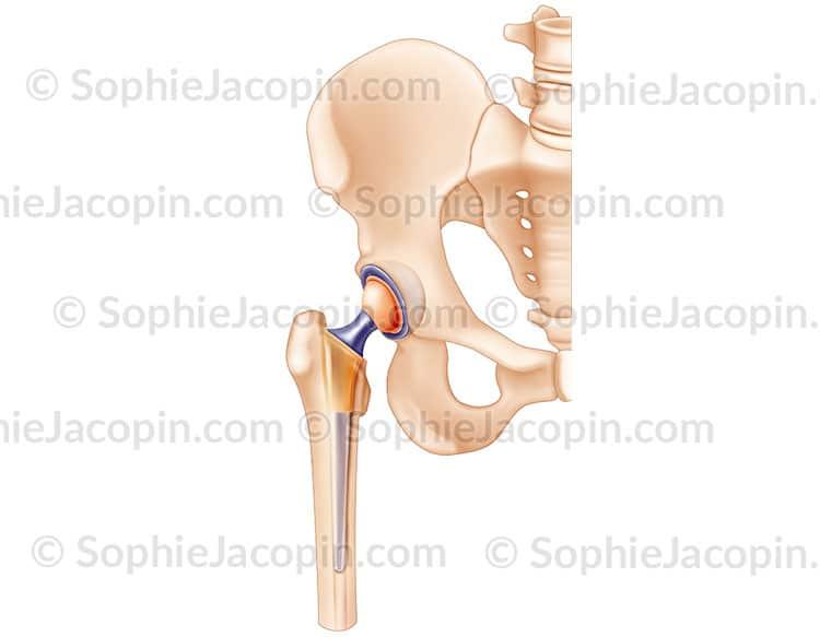 Prothèse hanche