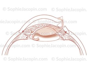 Phacoémulsification implant