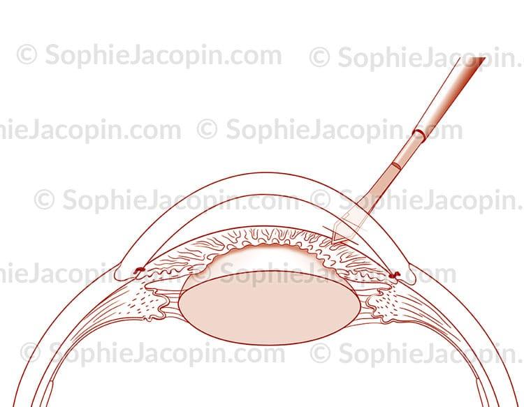 phacoémulsification incision