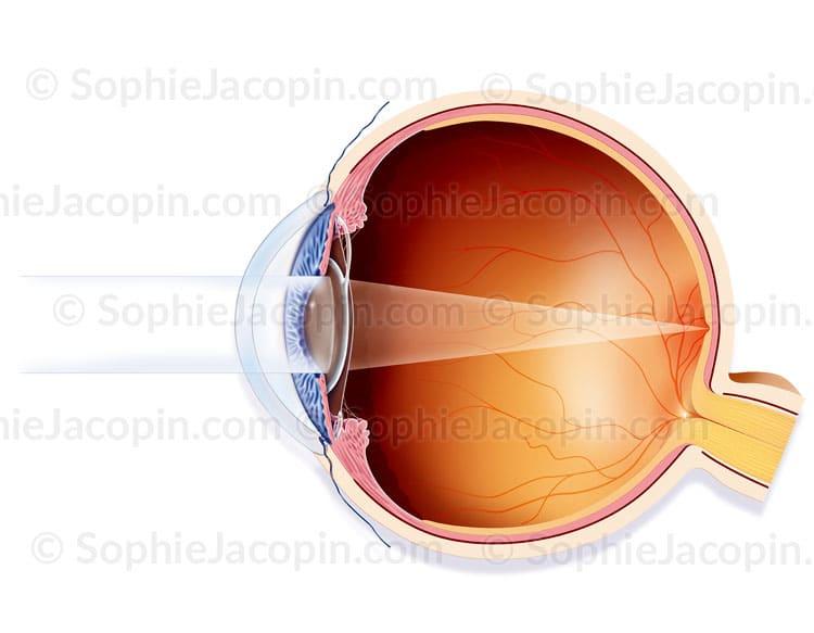 Traitement cataracte-glaucome