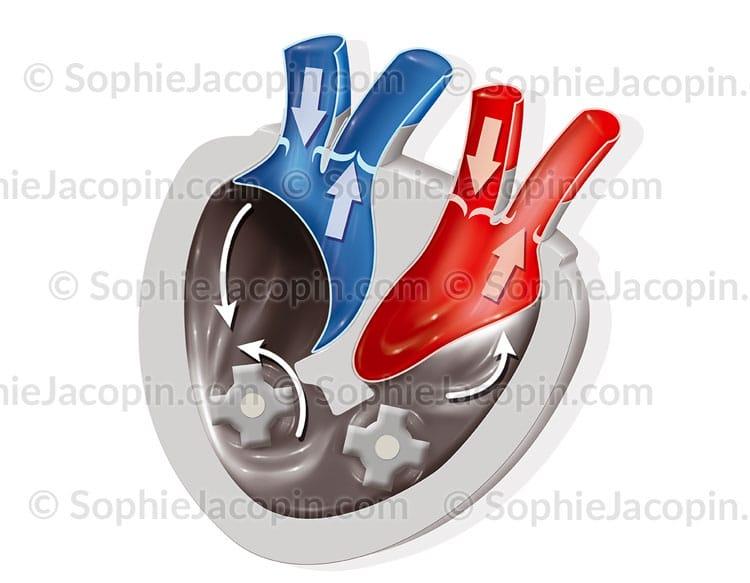 Coeur artificiel