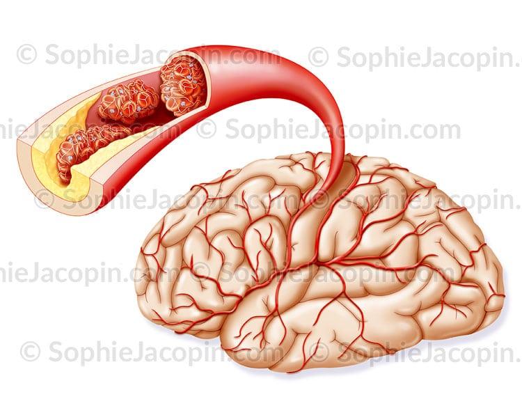 Thrombus embole, embolie