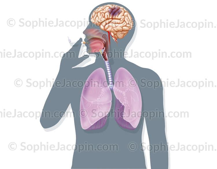 Ischémie cérébrale et tabagisme