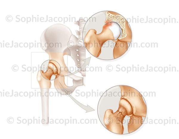 Pathologies de la hanche