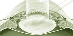 Pathologies - Œil / Paupières - Cataracte