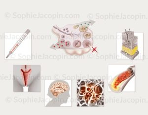 Conséquences de la ménopause