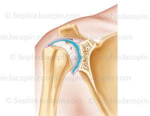 Traitement arthrose épaule