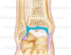 Traitement arthrose cheville