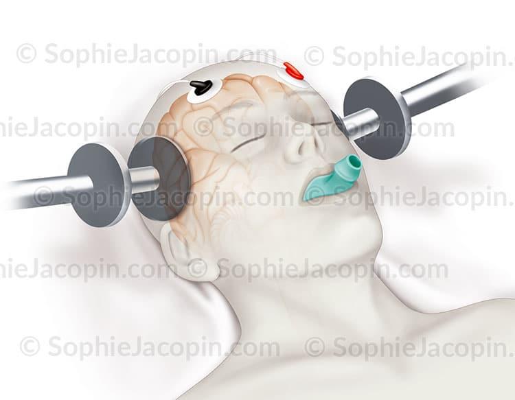 Illustration médicale Électrochocs