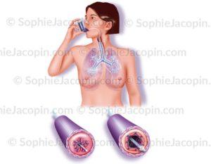 Illustration medicale Crise d'asthme