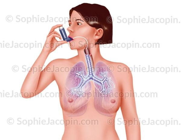 Illustration medicale Traitement asthme