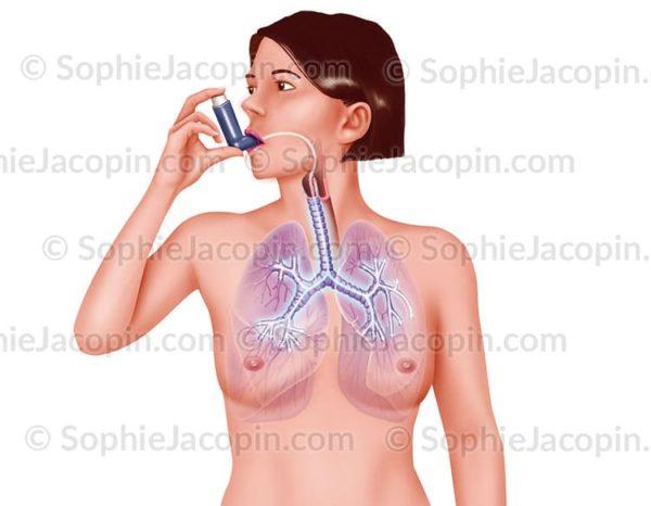 Illustration medicale Traitement asthme