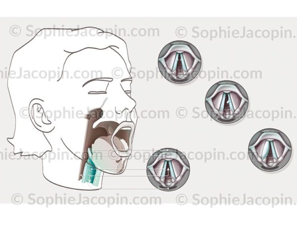 Pathologies cordes vocales