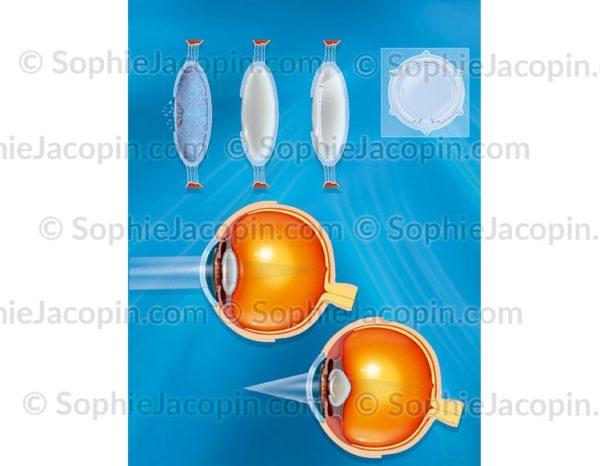 Implant oculaire électrique