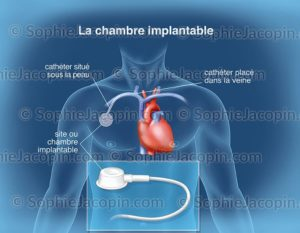 Chambre implacable