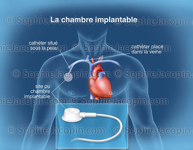 Chambre implantable illustration medicale didactique for Chambre implantable