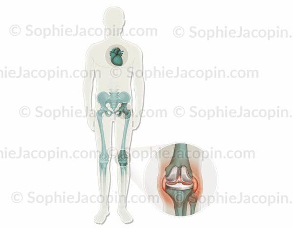 Prothèses infectées