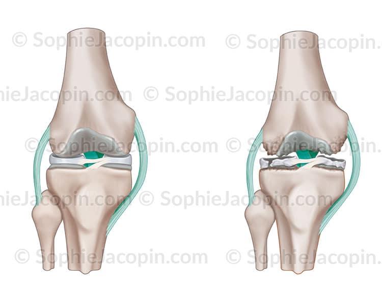 Arthrose genou illustration medicale didactique - Dessin du genou ...