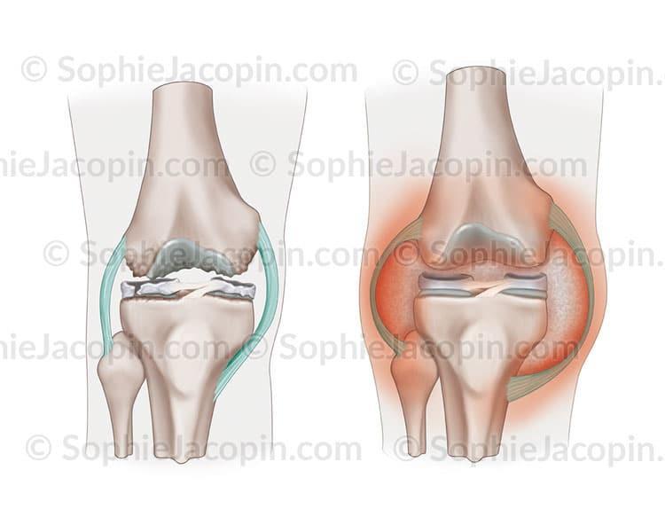 Arthrose Arthrite