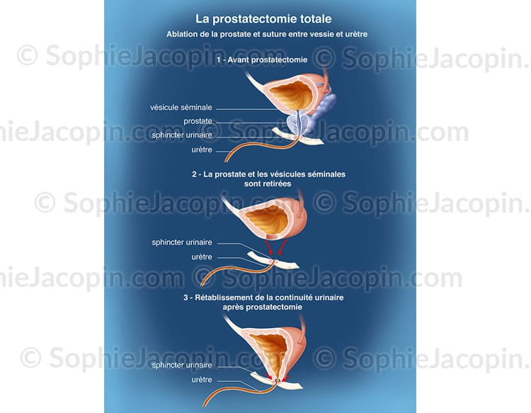 Prostatectomie