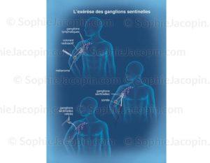 Exérèse ganglionnaire