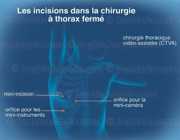 Incisions chirurgicales pulmonaires