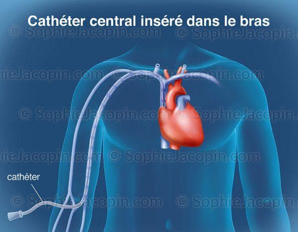 cathéter central