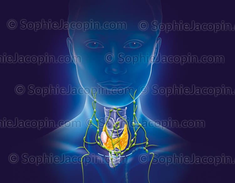 Illustration medicale_Nodule thyroïdien