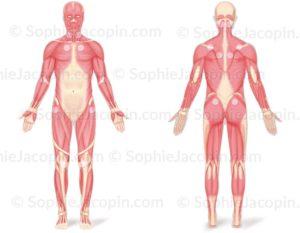 Illustration médicale - Fibromyalgie