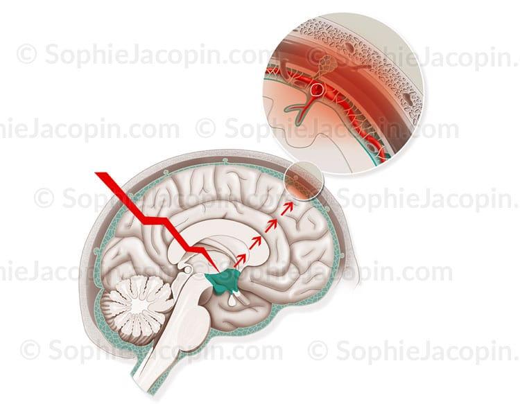 Illustration médicale - migraine