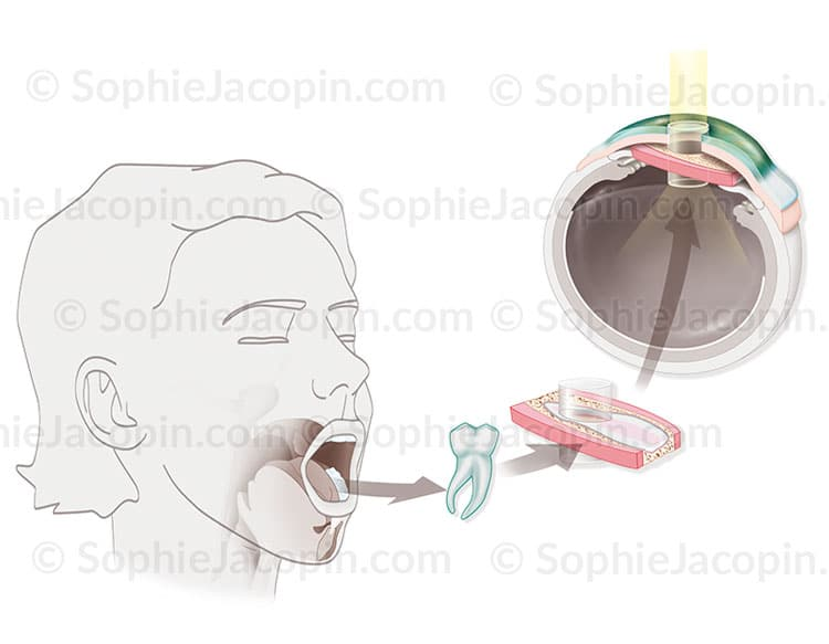 Osteo-odonto-kératoprothèse