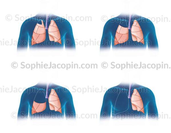 Chirurgies pulmonaires