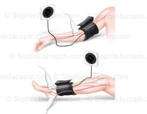 illustration médicale - Prise-tension-artérielle-