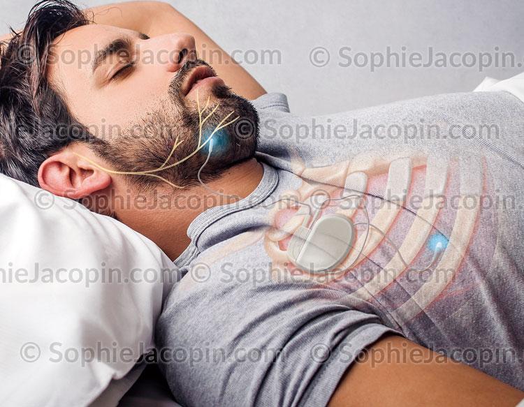 Illustration medicale_Traitement apnée du sommeil