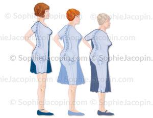 Ostéoporose-5663