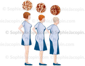 Ostéoporose-5664